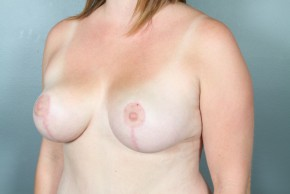 After Photo - Breast Reduction - Case #11815 - Oblique View