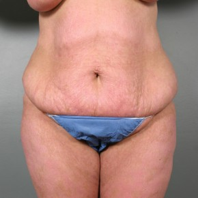 Before Photo - Tummy Tuck - Case #11812 - Abdominoplasty - Frontal View