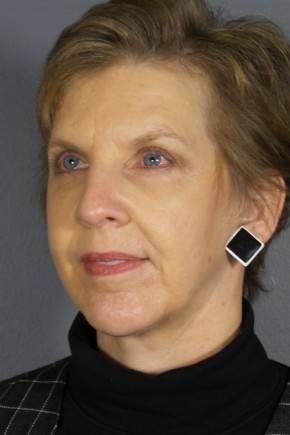 After Photo - Facelift - Case #11830 - Facelift with Chin Augmentation - Oblique View