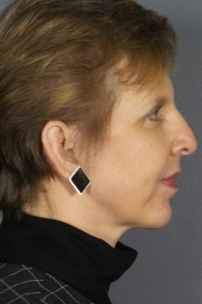 After Photo - Facelift - Case #11830 - Facelift with Chin Augmentation - Lateral View