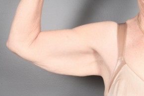 Before Photo - Upper Arm Lift - Case #11831 - Armlift after Massive Weight Loss - Frontal View