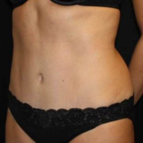 After Photo - Mommy Makeover - Case #11833 - Abdominoplasty - 39 year old female. - Oblique View