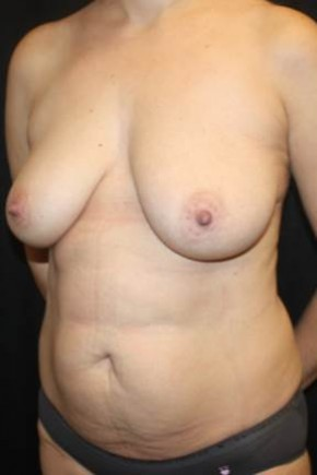 Before Photo - Mommy Makeover - Case #11834 - Mommy Makeover - 40 year old female. - Oblique View