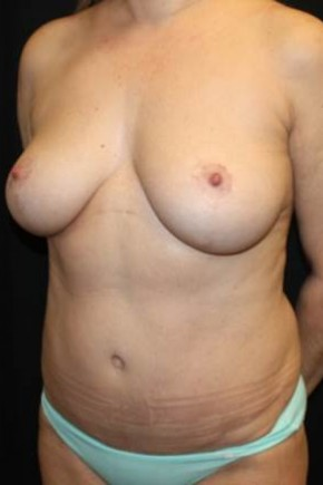 After Photo - Mommy Makeover - Case #11834 - Mommy Makeover - 40 year old female. - Oblique View
