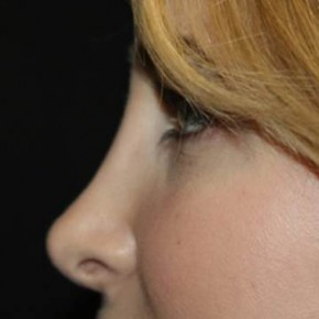 After Photo - Nose Surgery - Case #11835 - Rhinoplasty  - 24 year old female. - Lateral View