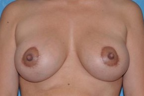 After Photo - Breast Lift - Case #11850 - Breast Lift with Implants  - Frontal View