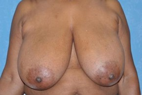 Before Photo - Breast Reduction - Case #11851 - Frontal View