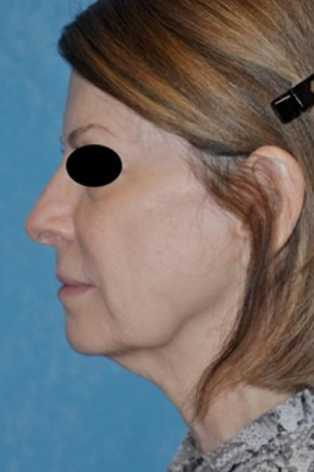 Before Photo - Facelift - Case #11852 - Face and Neck Lift  - Lateral View