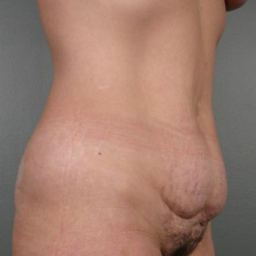 Before Photo - Tummy Tuck - Case #11808 - Abdominoplasty - Oblique View