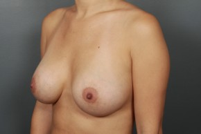 After Photo - Breast Augmentation - Case #11855 - Breast Augmentation with Submuscular Saline Implants - Oblique View