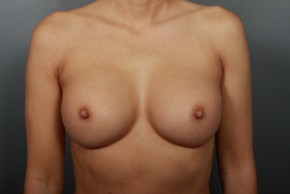 After Photo - Breast Augmentation - Case #11856 - Breast Augmentation with Submuscular Saline Implants - Frontal View