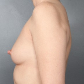 Before Photo - Breast Augmentation - Case #11856 - Breast Augmentation with Submuscular Saline Implants - Lateral View