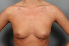 Before Photo - Breast Augmentation - Case #11857 - Breast Augmentation with Submuscular Round Silicone Implants - Frontal View