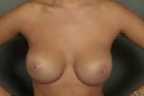 After Photo - Breast Augmentation - Case #11857 - Breast Augmentation with Submuscular Round Silicone Implants - Frontal View