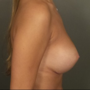 After Photo - Breast Augmentation - Case #11857 - Breast Augmentation with Submuscular Round Silicone Implants - Lateral View