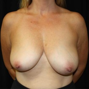 Before Photo - Breast Lift - Case #11874 - Breast Lift - 43 year old female. - Frontal View