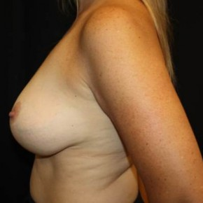 After Photo - Breast Lift - Case #11874 - Breast Lift - 43 year old female. - Lateral View
