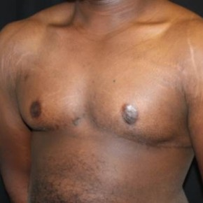 After Photo - Gynecomastia - Case #11208 - 22 year old Gynecomastia - Oblique View