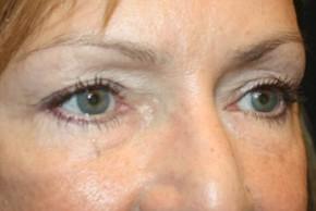 After Photo - Eyelid Surgery - Case #11882 - Blepharoplasty - 57 year old female. - Oblique View