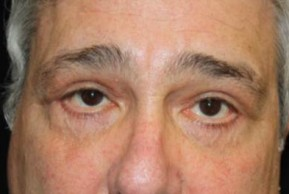 Before Photo - Eyelid Surgery - Case #11883 - Blepharoplasty - 61 year old male. - Frontal View
