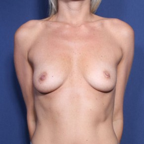 Before Photo - Breast Augmentation - Case #11895 - 32 Years Old Female  - Frontal View