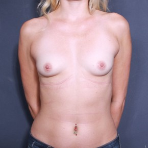 Before Photo - Breast Augmentation - Case #11899 - 27 Years Old Female  - Frontal View