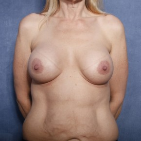 After Photo - Breast Augmentation - Case #11900 - 49 Years Old Female  - Frontal View