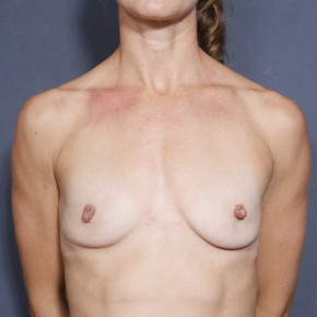 Before Photo - Breast Augmentation - Case #11901 - 33 Years Old Female  - Frontal View