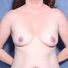 Before Photo - Breast Augmentation - Case #11903 - 43 Years Old Female  - Frontal View