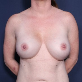 After Photo - Breast Augmentation - Case #11903 - 43 Years Old Female  - Frontal View