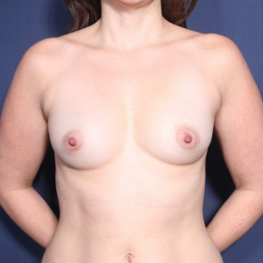 Before Photo - Breast Augmentation - Case #11902 - 32 Years Old Female - Frontal View