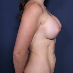 After Photo - Breast Augmentation - Case #11902 - 32 Years Old Female - Oblique View