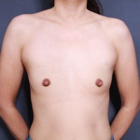 Before Photo - Breast Augmentation - Case #11910 - 38 Years Old Female - Frontal View