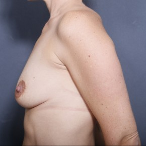 Before Photo - Breast Lift - Case #11911 - 33 Years Old Female (Breast Augmentation with Lift)  - Lateral View