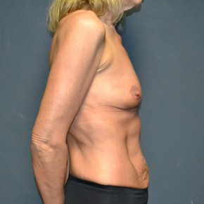 Before Photo - Breast Augmentation - Case #11900 - 49 Years Old Female  - Lateral View