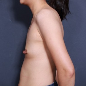 Before Photo - Breast Augmentation - Case #11910 - 38 Years Old Female - Lateral View