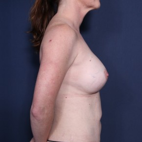 After Photo - Breast Augmentation - Case #11903 - 43 Years Old Female  - Lateral View