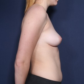 Before Photo - Breast Augmentation - Case #11898 - 19 Year Old Female - Lateral View