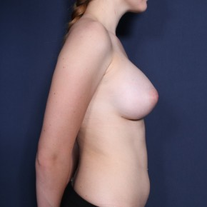 After Photo - Breast Augmentation - Case #11898 - 19 Year Old Female - Lateral View