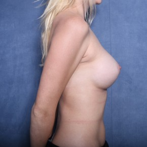 After Photo - Breast Augmentation - Case #11899 - 27 Years Old Female  - Lateral View