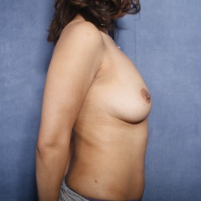 Before Photo - Breast Lift - Case #11912 - 38 Years Old Female - Lateral View