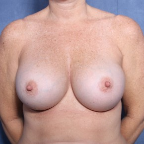After Photo - Breast Revision - Case #11913 - 45 Years Old Female  - Frontal View