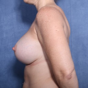 After Photo - Breast Revision - Case #11913 - 45 Years Old Female  - Lateral View