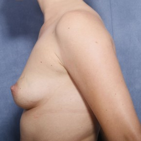 Before Photo - Breast Lift - Case #11915 - 27 Years Old Female - Lateral View