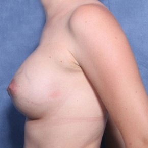 After Photo - Breast Lift - Case #11915 - 27 Years Old Female - Lateral View