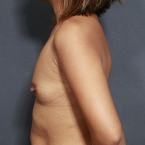 Before Photo - Breast Augmentation - Case #11916 - 30 Years Old Female  - Lateral View