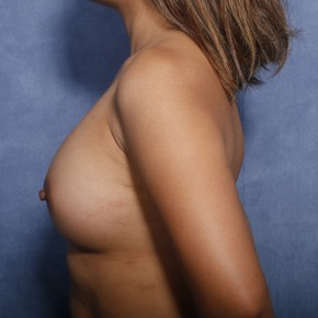 After Photo - Breast Augmentation - Case #11916 - 30 Years Old Female  - Lateral View