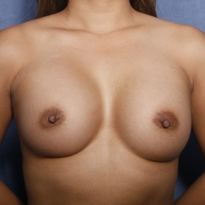 After Photo - Breast Augmentation - Case #11916 - 30 Years Old Female  - Frontal View