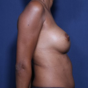 Before Photo - Breast Revision - Case #11917 - 38 Years Old Female - Lateral View