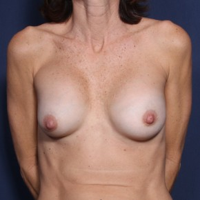 Before Photo - Breast Revision - Case #11918 - 53 Years Old Female  - Frontal View